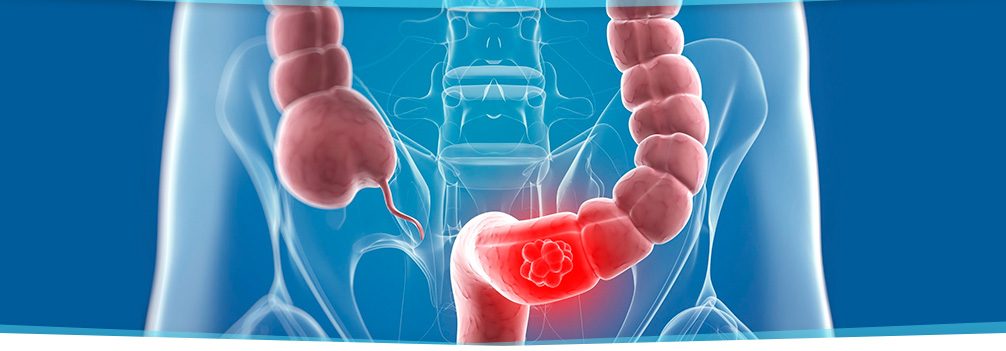 Colon cancer detection in West Palm Beach